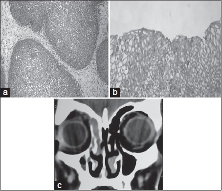 Figure 2: Photomicrograph showing the inverted papilloma. (a) Lobules of squamous epithelial cells invading the stroma (H and E, 40×). (b) Inverted papilloma showing koilocytic changes (H and E,40×). (c) Postoperative CT scan (coronal cut) showing the resolution of the disease with mucosal thickening in the frontonasal duct