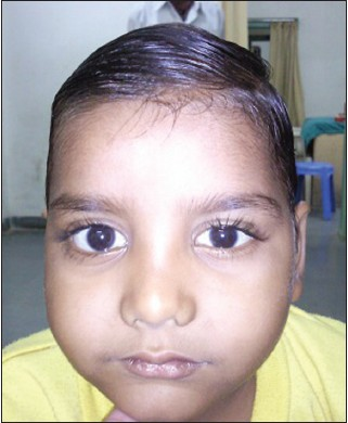 Figure 2: Child after a course of systemic steroids. The proptosis in the right eye has reduced, but not disappeared totally