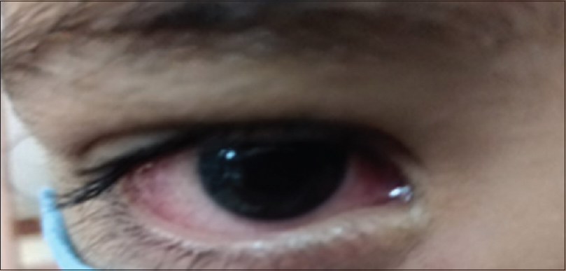 Figure 2: Unilateral mucopurulent conjunctivitis on treatment